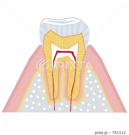 歯の断面図 781512