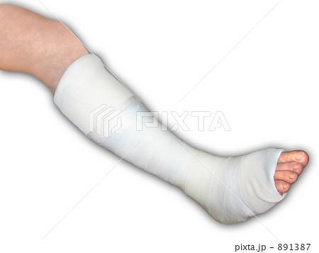 骨折してギプスを着けた足 横アングル 891387