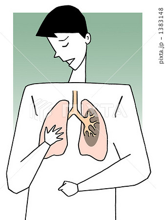 肺疾患 1383148