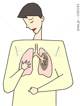 肺疾患 1383163