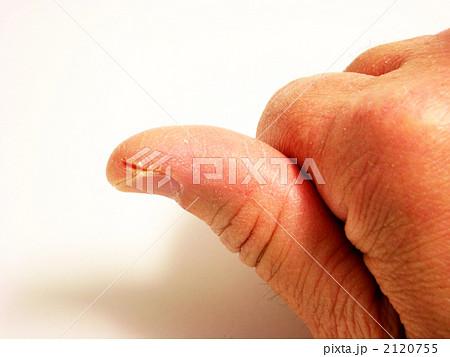 親指 ひび割れ