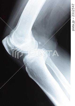 膝関節側面像 2312547