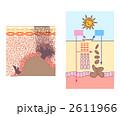しみ 日焼け 肌のイラスト 2611966
