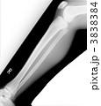 レントゲン 右膝関節とすね 3838384