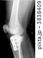 レントゲン 右膝関節とすね 医療器具・ボルト付き 3838409