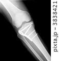 レントゲン 右膝関節とすね 医療器具・ボルト付き 3838421