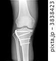 レントゲン 右膝関節とすね 医療器具・ボルト付き 3838423