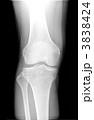 レントゲン 右膝関節とすね 3838424