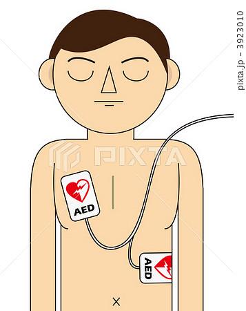 AED 心肺蘇生