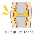 関節痛 膝痛 関節炎のイラスト 6018272
