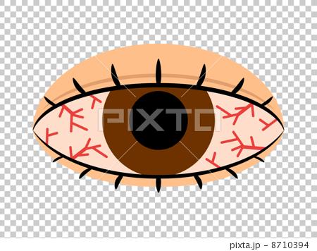 brain congestion, eyes, eye 8710394