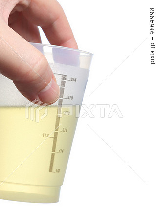 Holding urine sampleの写真素材 [9864998] - PIXTA