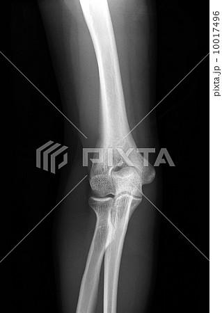 右肘のレントゲン写真 10017496