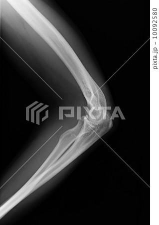左肘のレントゲン写真 10092580