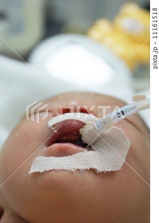 集中治療室の赤ちゃん 11161518