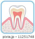 歯の断面図 11251748