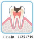 歯の断面図 虫歯 11251749