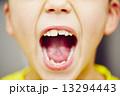 歯科 歯 口の写真 13294443