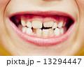 歯科 歯 口の写真 13294447