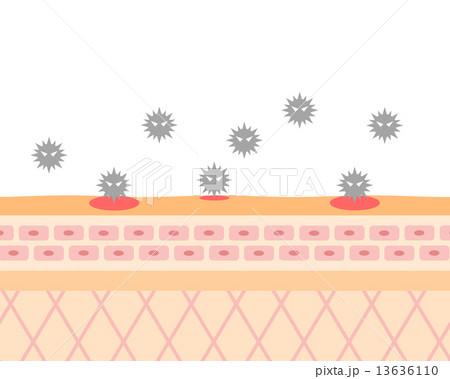 肌の断面にばい菌が 13636110