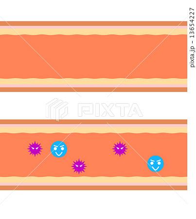 血管内の細菌のイラスト素材 [13654227] - PIXTA
