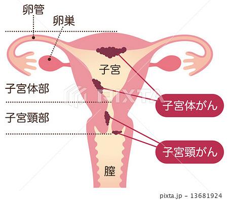 子宮がん 女性のからだのイラスト素材
