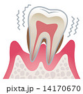 歯の断面図 歯周病 14170670