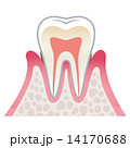 歯の断面図 歯周病 14170688