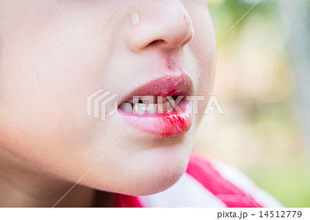 Little boy Bleeding at the mouth 14512779