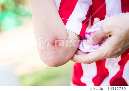 Young Child With bleeding arm wound near elbow 14512780
