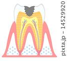 虫歯-進行度C2 14529920