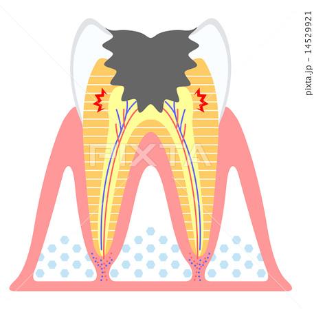 虫歯-進行度C3 14529921