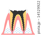 虫歯-進行度C4 14529922