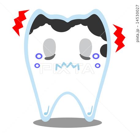 虫歯ちゃん-進行度C3 14530027