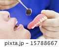 歯科 入れ歯 手元の写真 15788667
