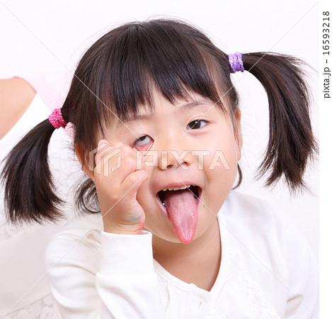 あっかんべー 子供の写真素材 [16593218] - PIXTA
