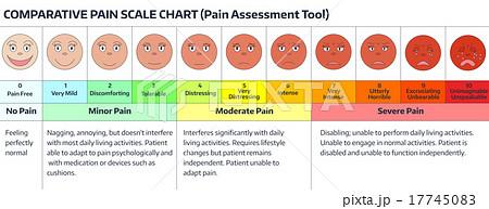 Faces pain scale chart 17745083 pixta