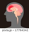 ベクター 頭痛 脳内出血のイラスト 17764342