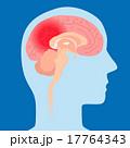 ベクター 頭痛 脳内出血のイラスト 17764343