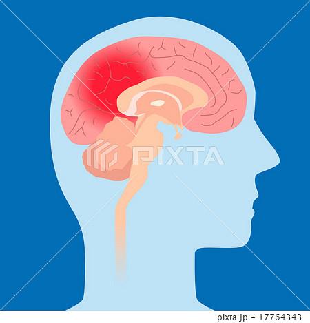 イラスト素材: 頭痛、脳梗塞、脳内出血 イメージイラスト