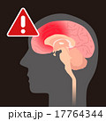 ベクター 頭痛 脳内出血のイラスト 17764344