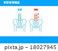 関節症 骨 説明図のイラスト 18027945