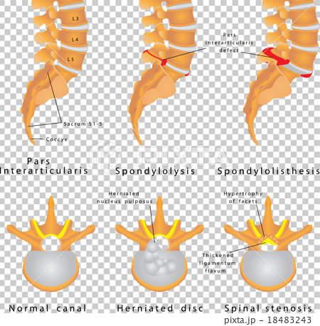 Spine Fracture 18483243