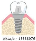 歯 インプラント 構造 18688976
