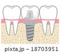 歯 インプラント 構造 18703951