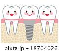 歯 インプラント 構造 18704026