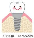歯 インプラント キャラクター 18709289