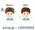 男性 白髪 イラスト before after  18849898