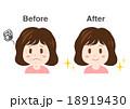 女性 シワ たるみ イラスト before after  18919430