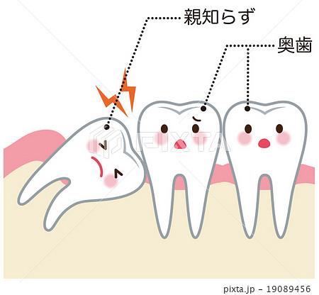 親知らず 歯 医療 19089456